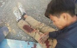 Hà Nội: Quay video người lạ cãi nhau, nam thanh niên bị chém tới tấp