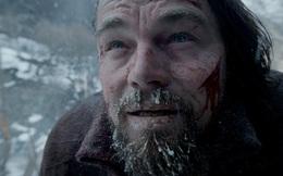 Chuyên gia y tế giải thích vì sao nhân vật do Leonardo DiCaprio thủ vai trong Revenant vẫn sống sót ngoài đời thực