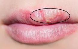 """Không chỉ làm """"xấu mặt"""", những dấu hiệu ở miệng còn cảnh báo một số bệnh nguy hiểm"""