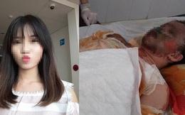 Cô gái xinh đẹp bị bỏng toàn thân, mặt biến dạng sau tai nạn