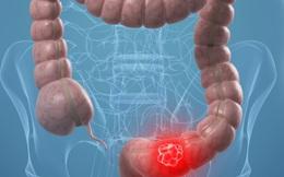 Đừng để bị chẩn đoán ung thư đại tràng quá muộn do nhầm dấu hiệu cảnh báo với đau bụng