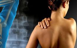 Hội chứng đau cơ này nguy hiểm nhưng lại thường xuyên bị mọi người bỏ qua