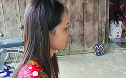 Hành động bất ngờ của cô gái sau khi bị rạch nhiều nhát vào mặt vụ đánh ghen ở Vĩnh Long