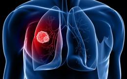 Dấu hiệu không ngờ cảnh báo bạn đang bị ung thư phổi