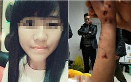 Nữ sinh nhảy lầu tự tử trong trạng thái khỏa thân, cơ thể xuất hiện nhiều vết tím bầm