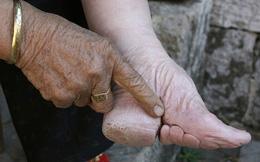 Nhìn những hình ảnh bó chân đến dị dạng này mới thấy mình may khi sinh ra ở thời hiện đại