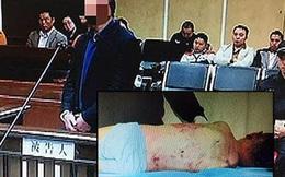 Rúng động vụ án bé trai 5 tuổi chết tức tưởi dưới tay người yêu của mẹ