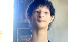 """Cuộc sống cùng cực của cậu bé """"người khỉ"""" 14 tuổi nhưng chỉ cao 0,8 mét, nặng 7kg ở Huế"""