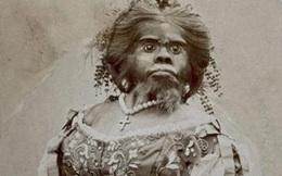"""Người phụ nữ """"xấu nhất thế giới"""", chết cũng không yên khi bị chồng lôi ra làm vật trưng bày để kiếm tiền"""