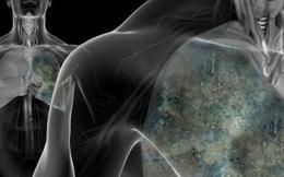 Ung thư phổi rất nguy hiểm nhưng phòng bệnh lại cực đơn giản: Hãy làm ngay 7 cách sau