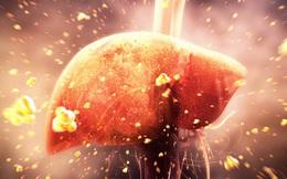 Dấu hiệu rõ ràng gan bị tổn thương: Chữa ngay đừng để ung thư gan mới ân hận