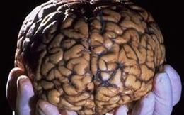 Khi giải quyết 1 bài toán, não bộ của bạn trông như thế này!