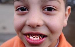 Ngộ độc chì cực kỳ nguy hiểm với trẻ em, hãy chú ý những điều sau để bảo vệ con em mình