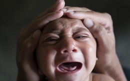 Việt Nam phát hiện trẻ sơ sinh đầu tiên nghi mắc chứng đầu nhỏ do Zika