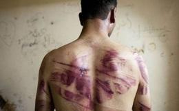 Lời kể kinh hoàng của những người bước ra từ nhà tù Syria