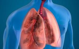 10 cách giúp thanh lọc phổi tự nhiên cực dễ làm có thể bạn chưa biết