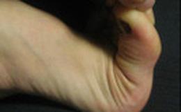 Chạm vào đầu ngón chân: Cách phát hiện kịp thời căn bệnh giết người nhanh hơn cả ung thư