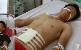 Hai cán bộ chiến sĩ Công an bị thương khi làm nhiệm vụ