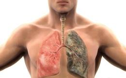 Mẹo cai thuốc lá và làm sạch phổi cực hiệu quả bằng các nguyên liệu tự nhiên