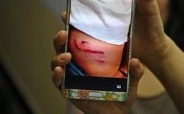 Hơn 100 học sinh bị giáo viên đánh đập dã man bằng gậy thép khiến dư luận dậy sóng