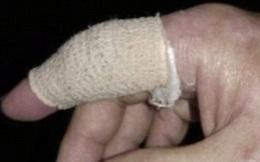 Vô tình bị giấy cứa vào tay, người đàn ông nhiễm bệnh chết người nguy hiểm hơn cả AIDS