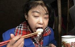 Kỳ lạ bé gái 15 tuổi mỗi ngày ăn 7kg gạo nhưng không mập lên nổi