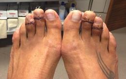 Bi kịch những đôi chân túa máu vì giày cao gót khiến chị em phát sợ