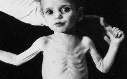 Dù nặng hay nhẹ, cứ nhiễm độc chì là trẻ phải chịu hậu quả suốt đời