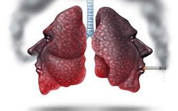 Nếu không muốn bị ung thư phổi, hãy làm những việc này để bảo vệ phổi ngay từ bây giờ