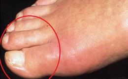 Chú ý ngón chân có dấu hiệu này là thận bạn đang... hỏng