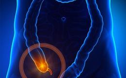 Những thông tin siêu lý thú về ruột thừa có thể bây giờ bạn mới biết