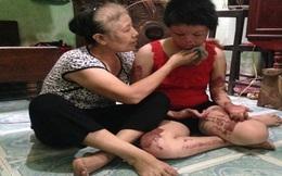 Tạm giam người chồng vũ phu tẩm xăng thiêu sống vợ ngày mồng 2 Tết