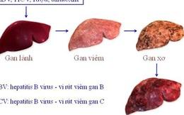 GS Nguyễn Chấn Hùng: Điểm mặt những bệnh ung thư đến từ virus, từ miệng