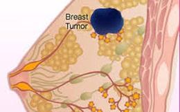 """Cảnh báo: Nhiều trường hợp bị cắt vú """"oan"""" vì tưởng ung thư"""