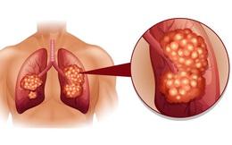 8 dấu hiệu ung thư phổi không nên bỏ qua ngay cả khi bạn không hút thuốc