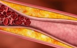 5 thực phẩm dễ kiếm thanh lọc chất cặn bã và độc tố trong máu