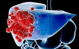 Ung thư gan: Nguy hiểm nhưng không có dấu hiệu rõ ràng, 3 đối tượng cần đề phòng bệnh
