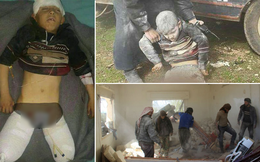Bị bom dội đứt lìa 2 chân, em bé Syria hoảng loạn la hét đòi bố bế