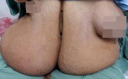 """Người đàn bà có bộ ngực lớn bất thường ở VN: """"Tôi khổ lắm, chẳng làm được gì vì ngực nặng"""""""