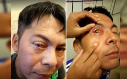 Người đàn ông bị ký sinh trùng ăn mòn giác mạc, mù tạm thời vì đeo kính áp tròng