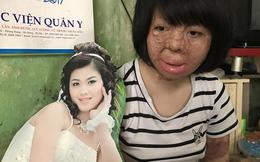 """NSƯT Chí Trung đau đớn trước dung nhan bị hủy hoại của """"Hoa hậu"""" Thùy Dung"""