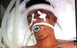 Khẩn cấp tìm người nhà của nam thanh niên đi nhờ xe gặp nạn nguy kịch ở TP Vinh
