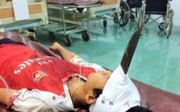 Bị dao đâm vào trán, bé trai chấn thương sọ não
