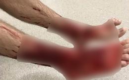 """Chàng trai 16 tuổi chân đỏ máu vì đụng phải """"quái vật"""" kỳ lạ dưới biển"""