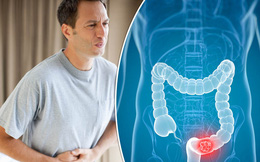 Các nhà khoa học đã tìm ra cách phát hiện sớm ung thư đại tràng mới