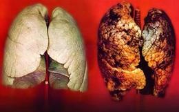 5 loại bệnh ung thư ở nam giới dễ nhầm lẫn, nhanh tử vong: Đừng để quá muộn mới chữa trị