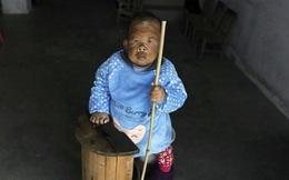 Người đàn ông 30 tuổi bị 'mắc kẹt' trong hình hài một đứa trẻ