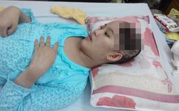 Xót xa cảnh cô gái trẻ bị vỡ hộp sọ nằm bất động ở nhà vì không có tiền chữa trị
