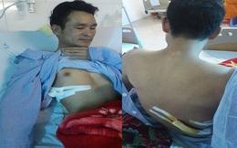 Người nhà phản ánh: Thanh niên bị đâm vì đưa cô gái đi cấp cứu