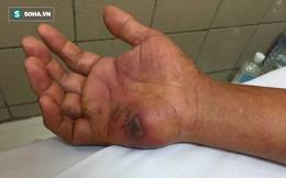 Đã đến mùa rắn độc: BS viện Bạch Mai mách các bước sơ cứu khi bị rắn cắn ai cũng cần biết